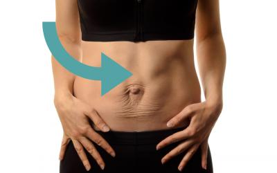 Femme enceinte: comprendre la diastase des grands droits.